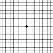 amsler-grid-off-544x543